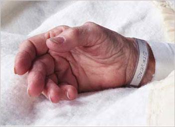 A patient's hand